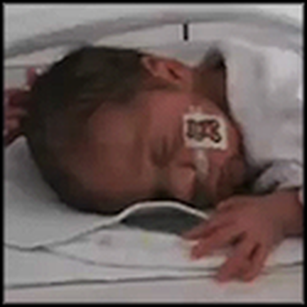 Car Accident Causes a Baby to be Born Early - Miracle Outcome