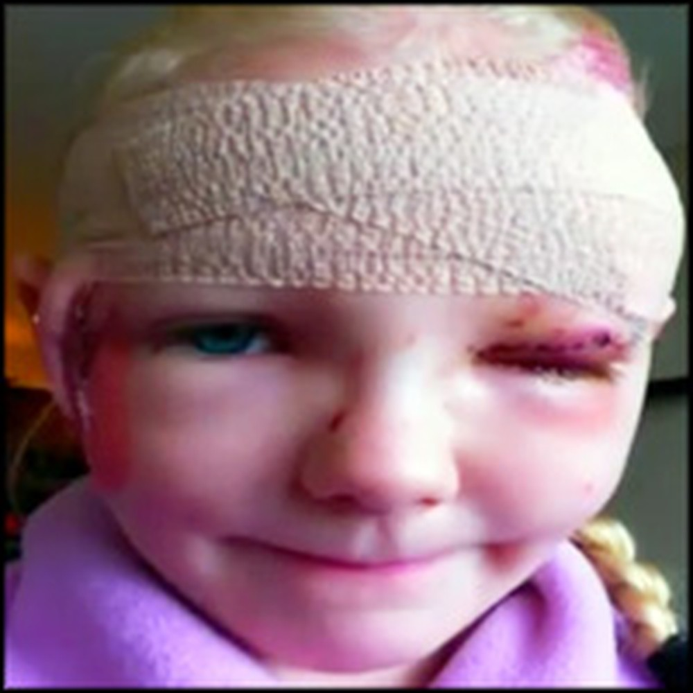Little Girl Saved From Vicious Pit Bull Attack By a Chihuahua