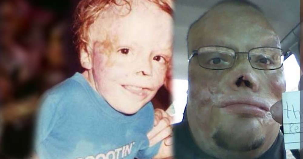 He Wasn't Supposed to Survive, but This Burn Victim Inspires. WOW.
