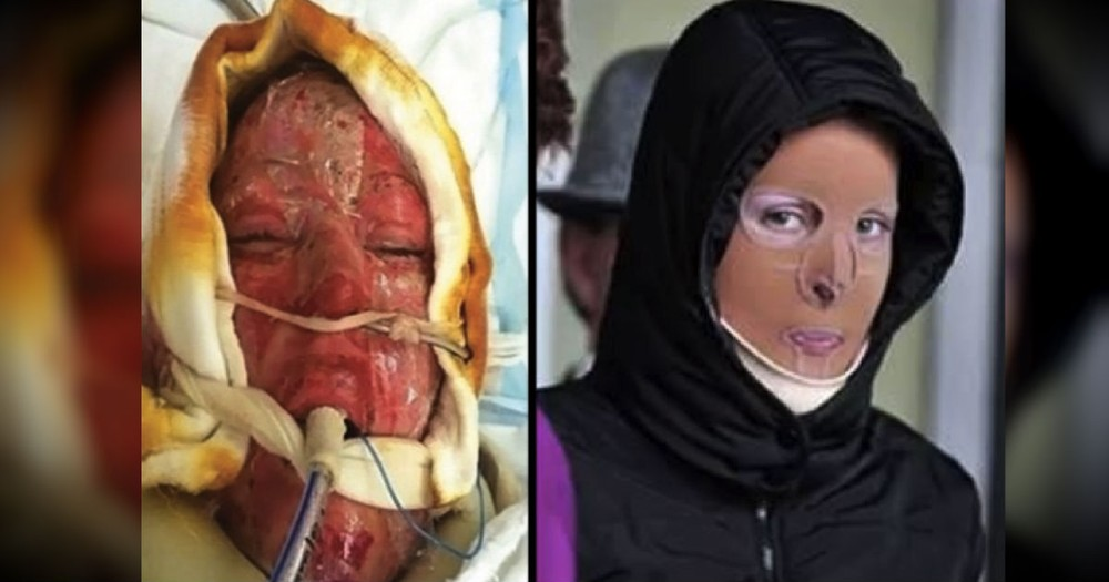 A Jealous Woman Set Her On Fire. After 2 Years, See Her Miraculous Recovery!