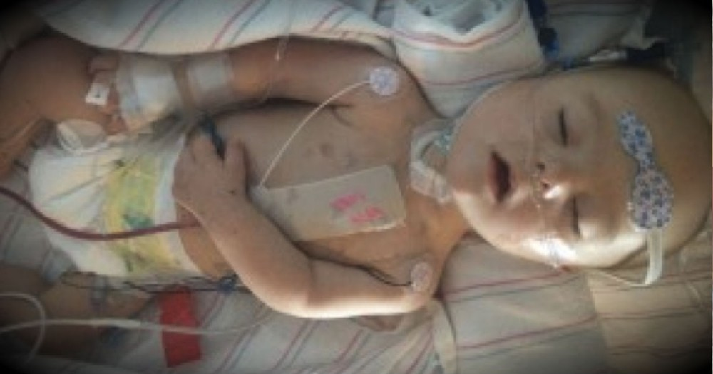A Mom's Heartfelt Letter To Her Baby's Surgeon Had Me In Tears!