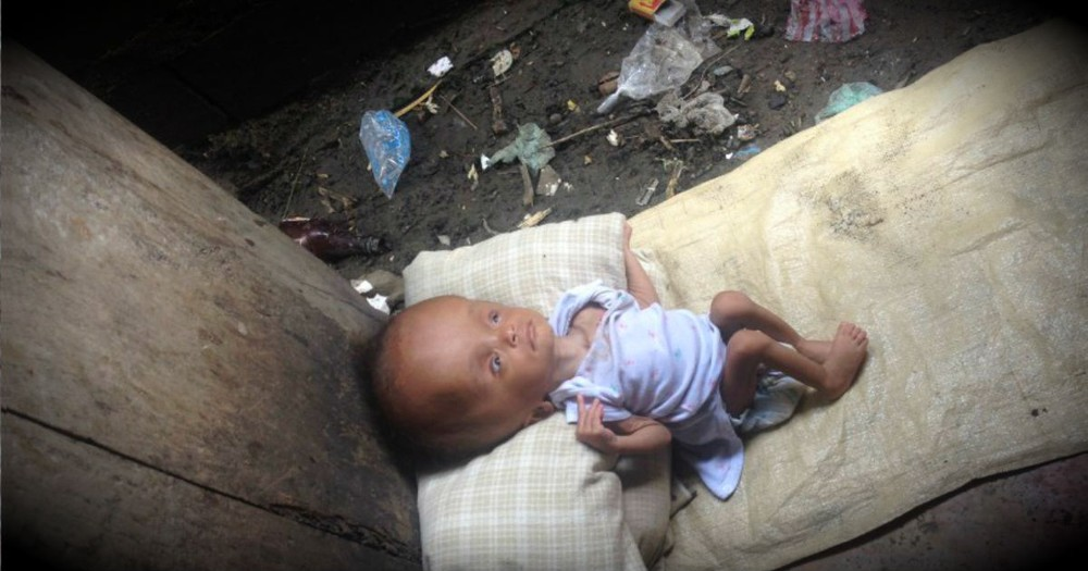 Doctors Said This Unwanted Baby Would Die, But God Sent A MIRACLE!