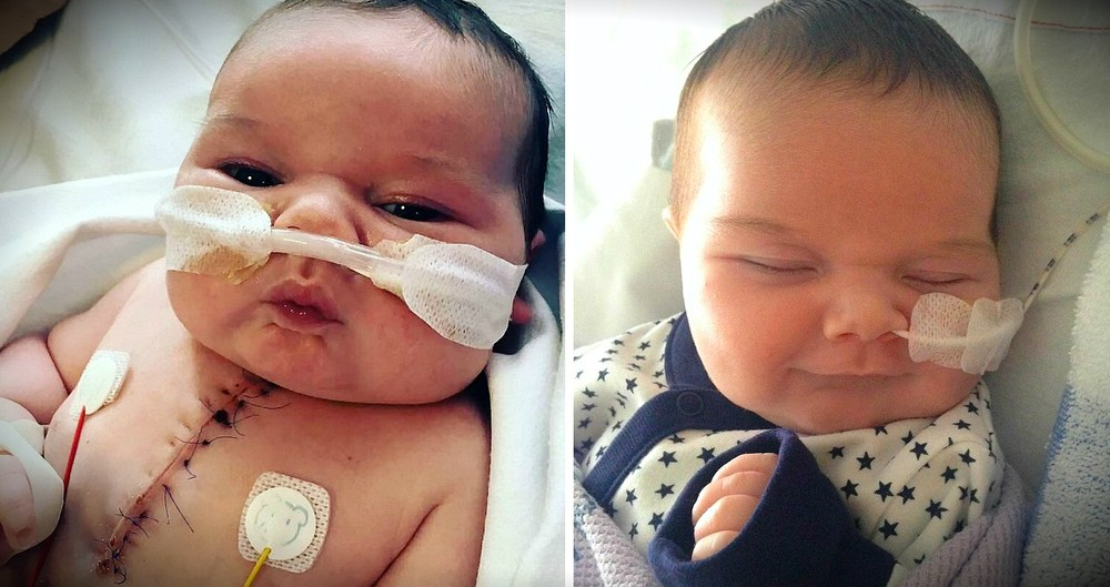 Miracle Baby Smiles After Being Born With Half A Heart