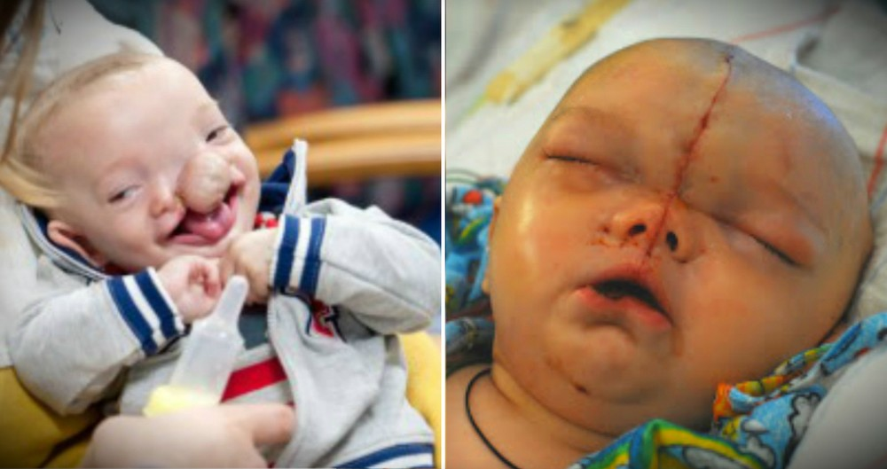 Baby Boy Not Expected To Survive Gets A Miracle