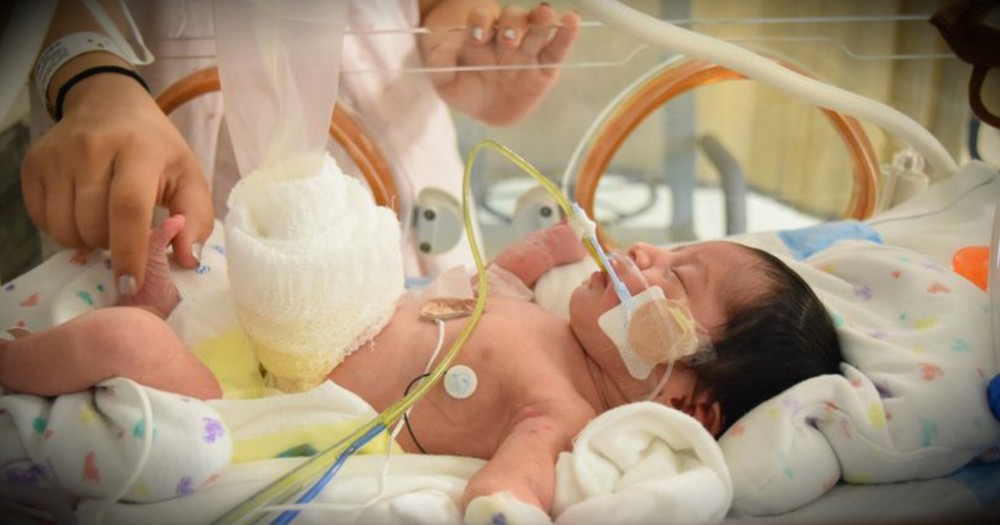 Miracle Baby Born With Intestines Outside Of Body Saved By Plastic Bag