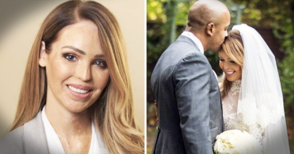 Acid Attack Survivor Katie Piper Is Moving On And Helping Others