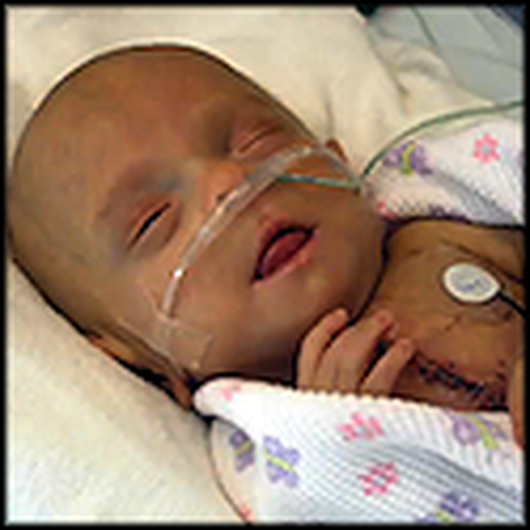 The Sad But Inspiring Story of a One Pound Miracle Baby