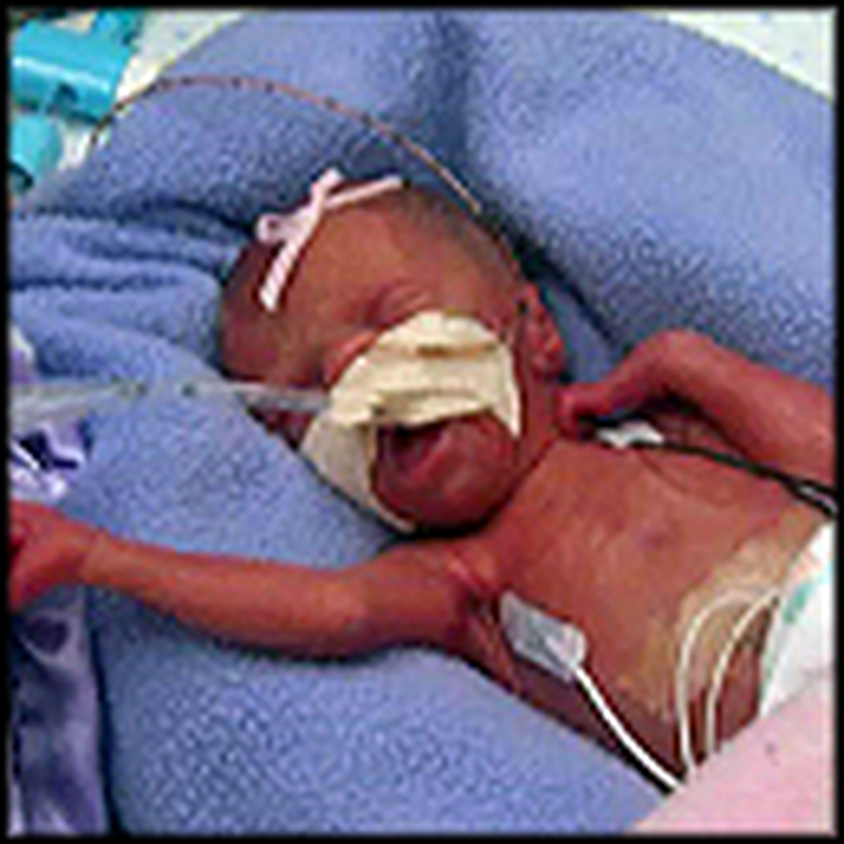 Dying Woman is Forced to Give Birth Early - Miracle Outcome
