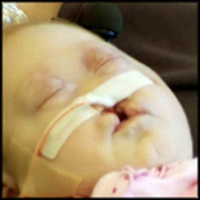 Doctors Said This Baby Should Not Live - But God Had a Plan for Pearl