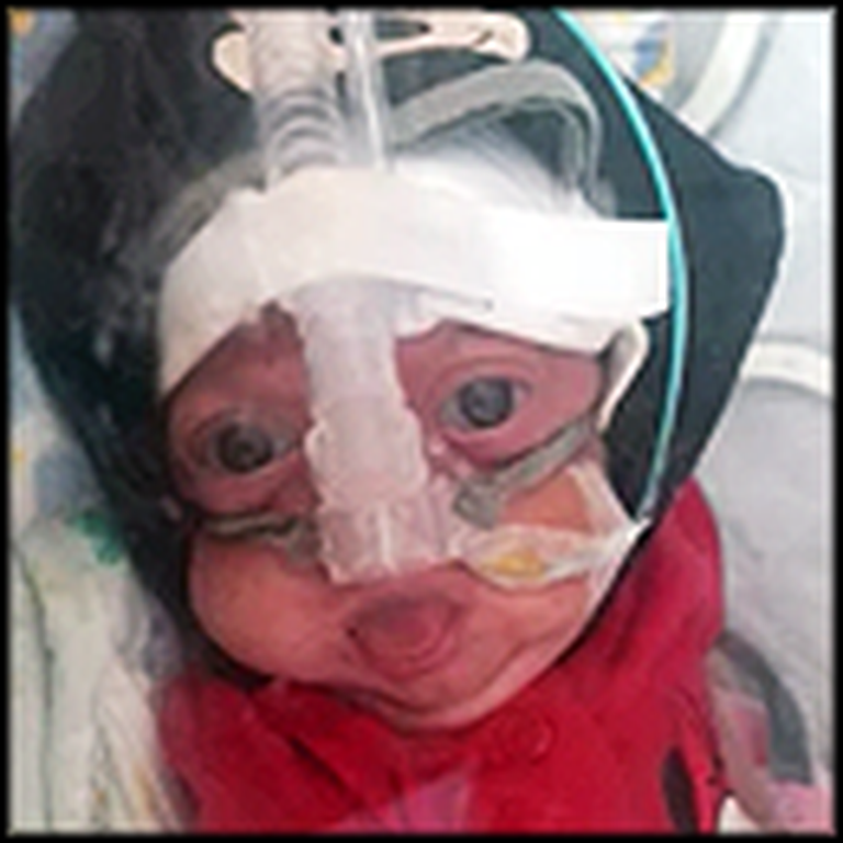 Tearjerking Story of One Miracle Baby's Struggle - Get Your Tissues