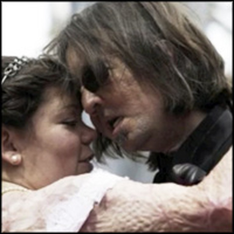 Face Transplant Recipient and Burn Victim Unite in an Amazing Marriage
