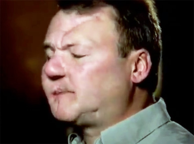Meth Addict Experiences a Miracle After Shooting Himself in the Face