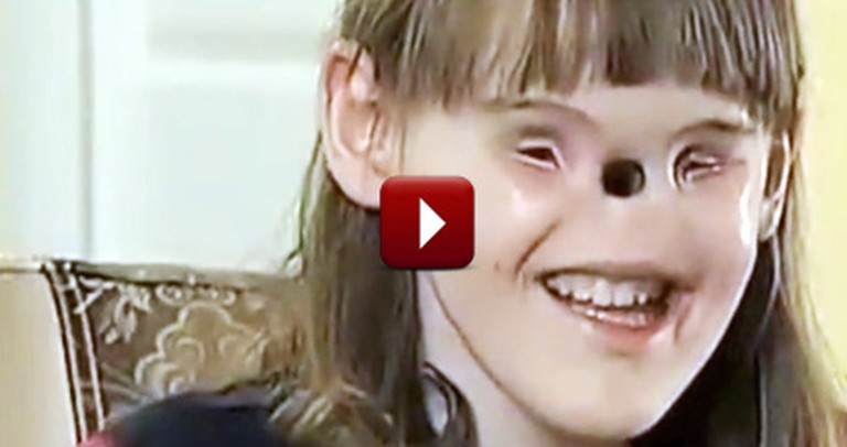 Girl Born With No Eyes or Nose Receives a Miracle