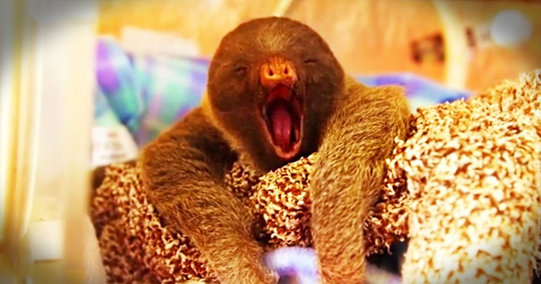 If You Think This Is Just A Cute Sleepy Baby, Then Wait 'Til You Hear His Incredible Story! WOW!