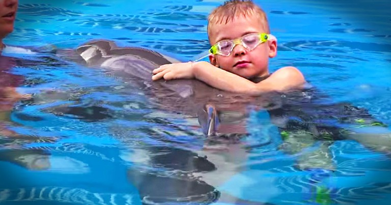 This Adorable Duo Just Melted My Heart. This Boy And Dolphin Have Something Special In Common!