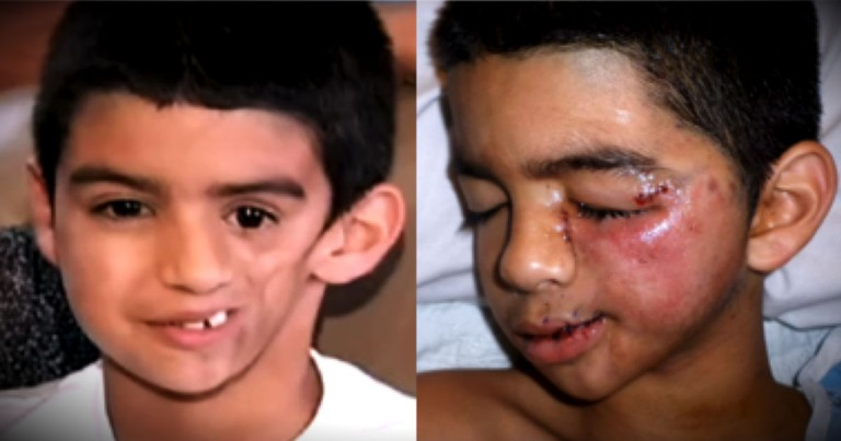 This Boy's Face Started Melting, But He Knew God Had Big Plans For Him!
