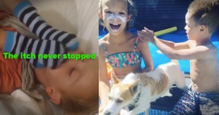 Little Boy Suffering From Eczema Has Powerful Transformation