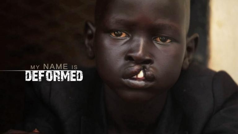 My Name is Deformed - Story Of Hope