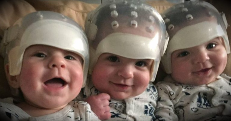 Triplets Born with Same Rare Birth Defect, Then Make Medical History