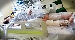 Woman In Coma Wiggles Toe Minutes Before Being Removed From Life Support